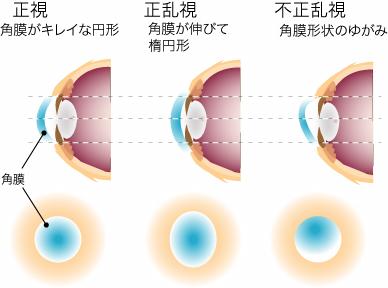 角膜の歪み